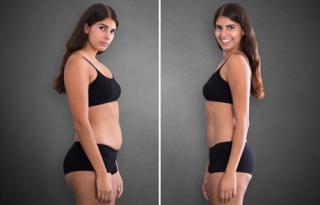 שאיבת שומן ללא ניתוח: עכשיו בישראל