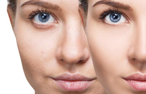 טיפולי מזותרפיה לשיקום עור הפנים: המדריך